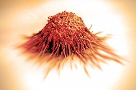 Nghiên cứu mới: Cây cỏ chữa ung thư, chứ không phải hóa chất!